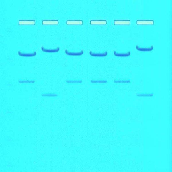Kit Impressão Digital Genética
